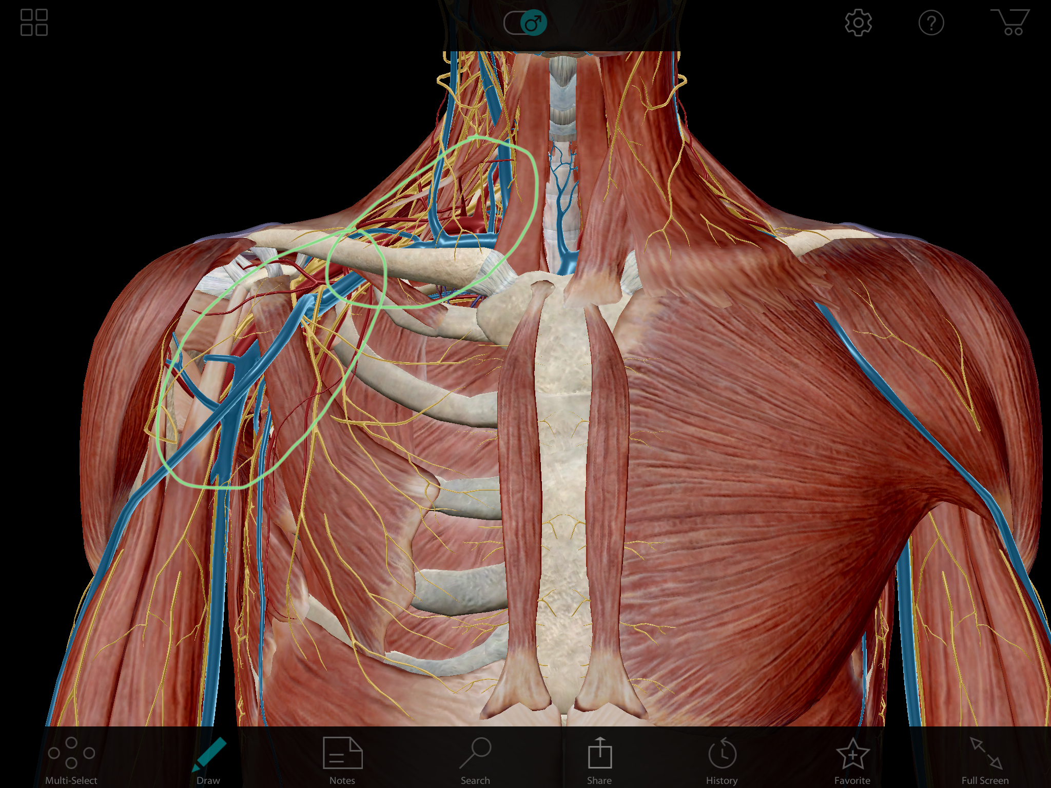 Typical Neurovascular compression neck/arm