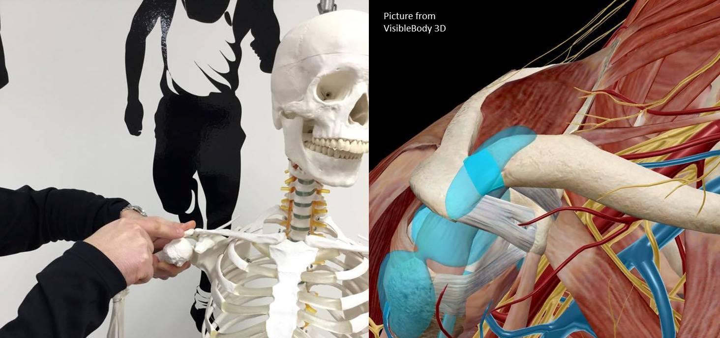 Impingement syndrome shoulder